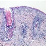 Case 2 Figure 2